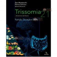 Trissomia 21 (Síndrome de Down)