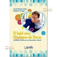 O bebê com Síndrome de Down